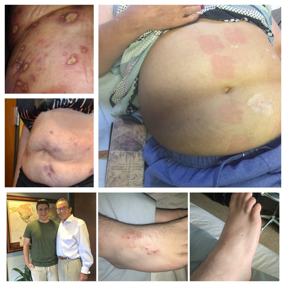 Calmare Therapy can reduce CRPS skin blisters and lesions